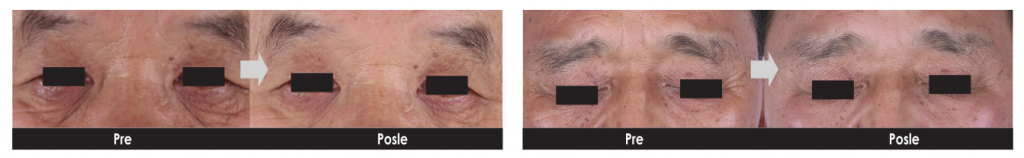 Eye Cell tretman 5