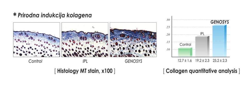 Genosys mikroiglice 3